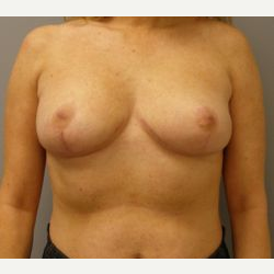 45-54 year old woman treated with Breast Reduction after 3280682