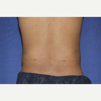 25-34 year old man treated with Laser Liposuction after 1958194