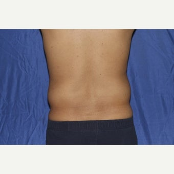 25-34 year old man treated with Laser Liposuction before 1958194
