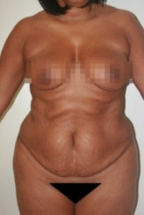 45-54 year old woman treated with Tummy Tuck before 1613058