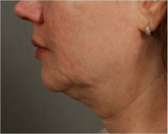 57 year old female with jowls and neck laxity treated with Smart Lipo by Dr. Ran Rubinstein, Newburgh, NY before 1151363