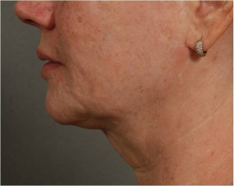 57 year old female with jowls and neck laxity treated with Smart Lipo by Dr. Ran Rubinstein, Newburgh, NY after 1151363