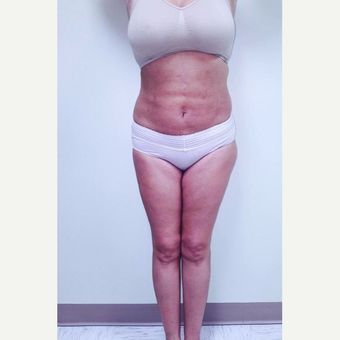 35-44 year old woman treated with Laser Liposuction after 3764321