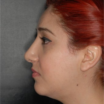 18-24 year old woman treated with Septoplasty after 1966940