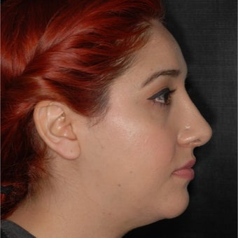 18-24 year old woman treated with Septoplasty 1966940