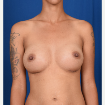 25-34 year old woman treated with Breast Augmentation after 3239963