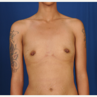 25-34 year old woman treated with Breast Augmentation before 3239963