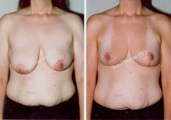 Mastopexy-Breast Lift before 243709