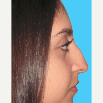 Rhinoplasty before 3814255