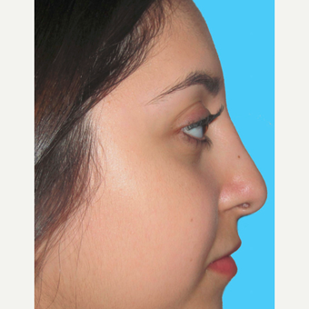 Rhinoplasty after 3814255