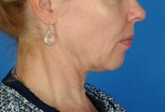 56 year old female interested in nonsurgical facial rejuvenation, Ulthera. before 1190884