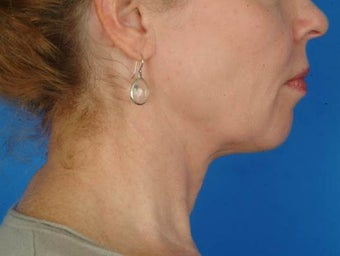56 year old female interested in nonsurgical facial rejuvenation, Ulthera. after 1190884