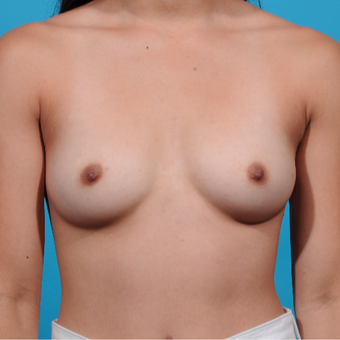 18-24 year old woman treated with Breast Augmentation before 3789282
