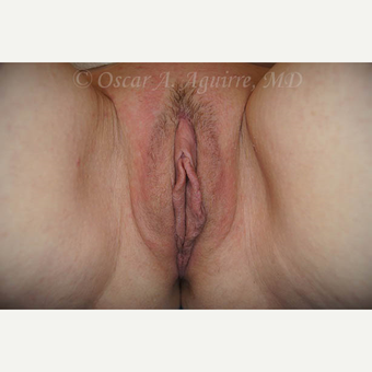 50 yo female had Labiaplasty of Labia Minora, Clitoral Hood Reduction with Clitoropexy after 3065091