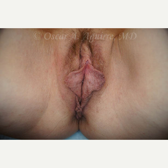50 yo female had Labiaplasty of Labia Minora, Clitoral Hood Reduction with Clitoropexy before 3065091