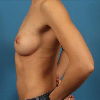 25-34 year old woman treated with Breast Implants before 3076251