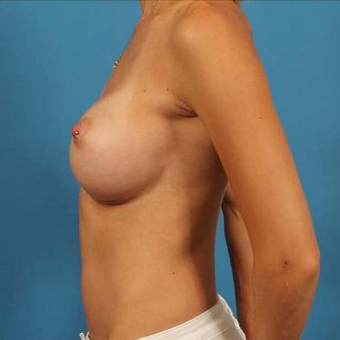 25-34 year old woman treated with Breast Implants after 3076251