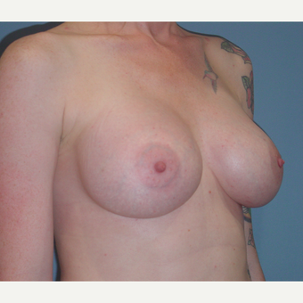25-34 year old woman treated with Breast Augmentation after 3059614