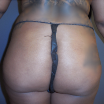 25-34 year old woman treated with Brazilian Butt Lift before 3383540