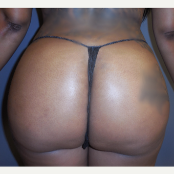 25-34 year old woman treated with Brazilian Butt Lift after 3383540