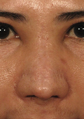 Fractional Laser Resurfacing for Burn Scar - Sciton Profractional after 1413048