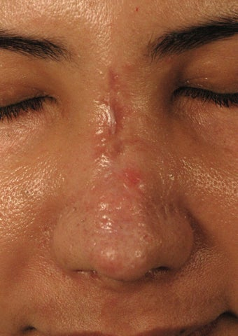 Fractional Laser Resurfacing for Burn Scar - Sciton Profractional before 1413048