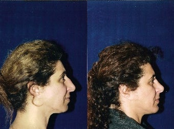Rhinoplasty and Septoplasty before 223642