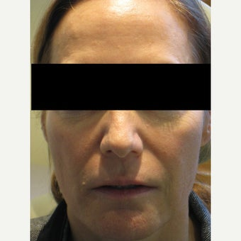 45-54 year old woman treated with Voluma before 1638556