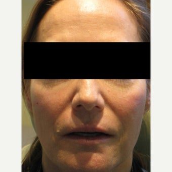 45-54 year old woman treated with Voluma after 1638556