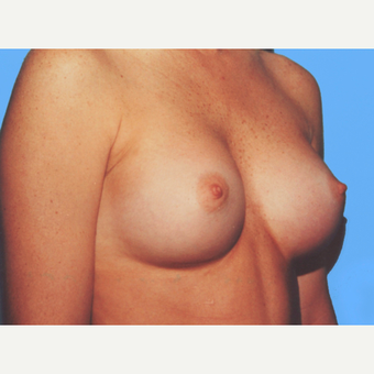 Breast Augmentation after 3732549