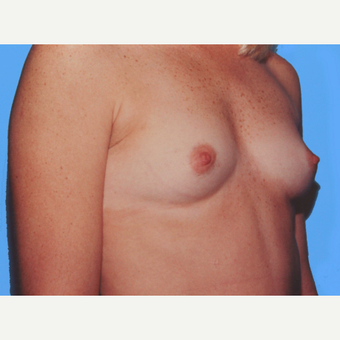 Breast Augmentation before 3732549