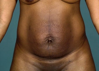 35 year old female treated with tummy tuck before 1249489