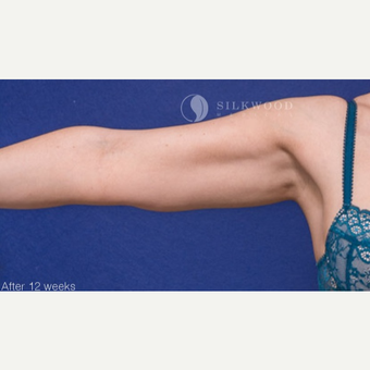 25-34 year old woman treated with CoolSculpting on arms after 3029494