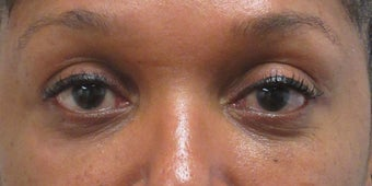 Before and after lower blepharoplasty after 3422729