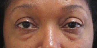 Before and after lower blepharoplasty before 3422729