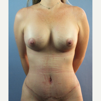 35-44 year old woman treated with Mommy Makeover after 3123497