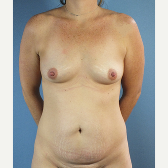 35-44 year old woman treated with Mommy Makeover before 3123497