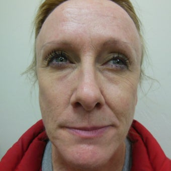 45-54 year old woman treated with Botox