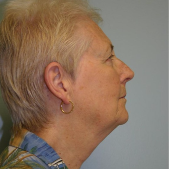 70 year old woman treated with Facelift before 3667713
