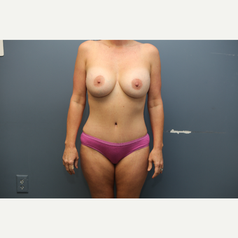 35-44 year old woman treated with Mommy Makeover after 3658867