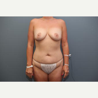 35-44 year old woman treated with Mommy Makeover before 3658867