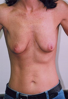 38 Year Old Female Breast Augmentation before 1355316