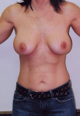 38 Year Old Female Breast Augmentation after 1355316
