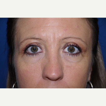 Eyelid Surgery after 3744052