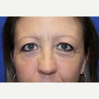 Eyelid Surgery before 3744052