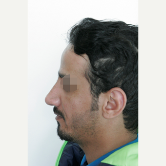 25-34 year old man treated with Rhinoplasty after 3068943