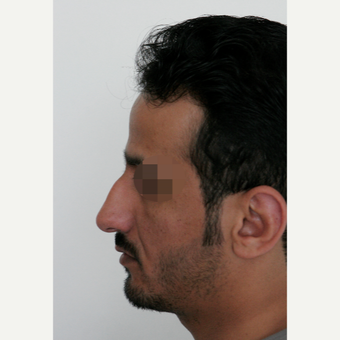 25-34 year old man treated with Rhinoplasty before 3068943