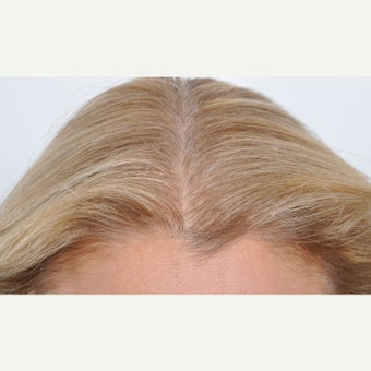 45-54 year old woman treated with PRP for Hair Loss after 2059868