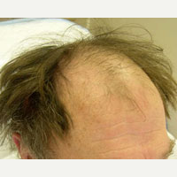 65 year old man treated with FUE Hair Transplant before 3815496