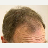 65 year old man treated with FUE Hair Transplant after 3815496